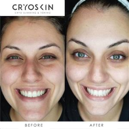 Cryoskin Facial Toning