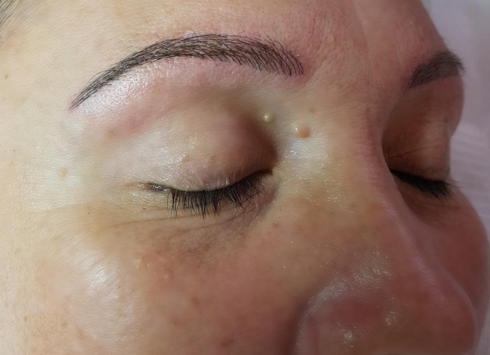 Cosmetic Tattoomicrobladingfeathertouch Eyebrows Now In Buderim